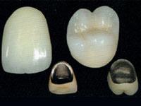 メタルボンド|かぎたに歯科医院